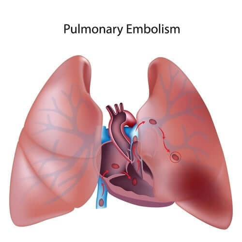 Everything You Need to Know About Pulmonary Thromboembolism