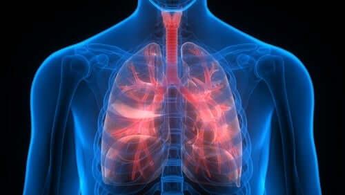 Pulmonary embolism.