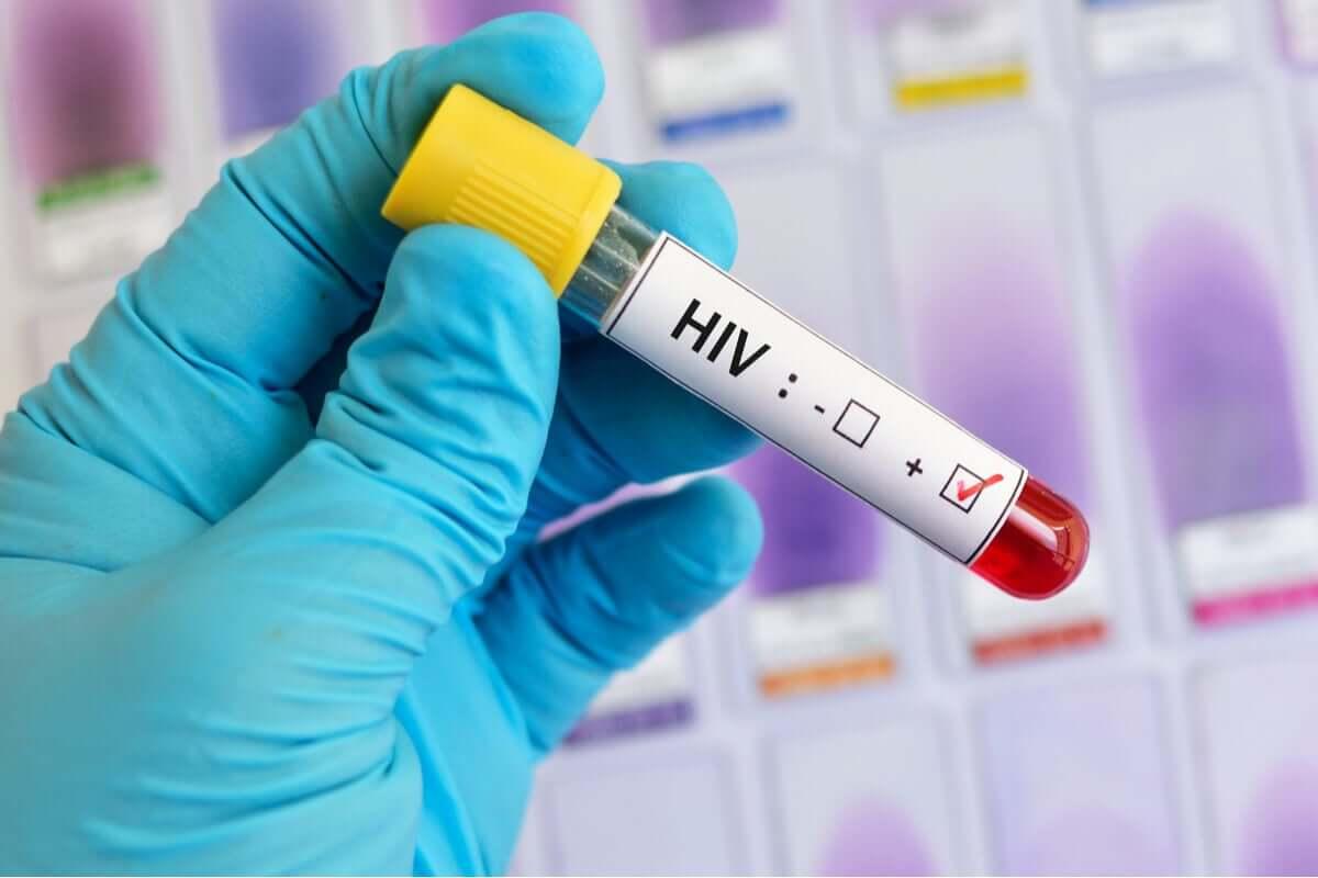 HIV test.