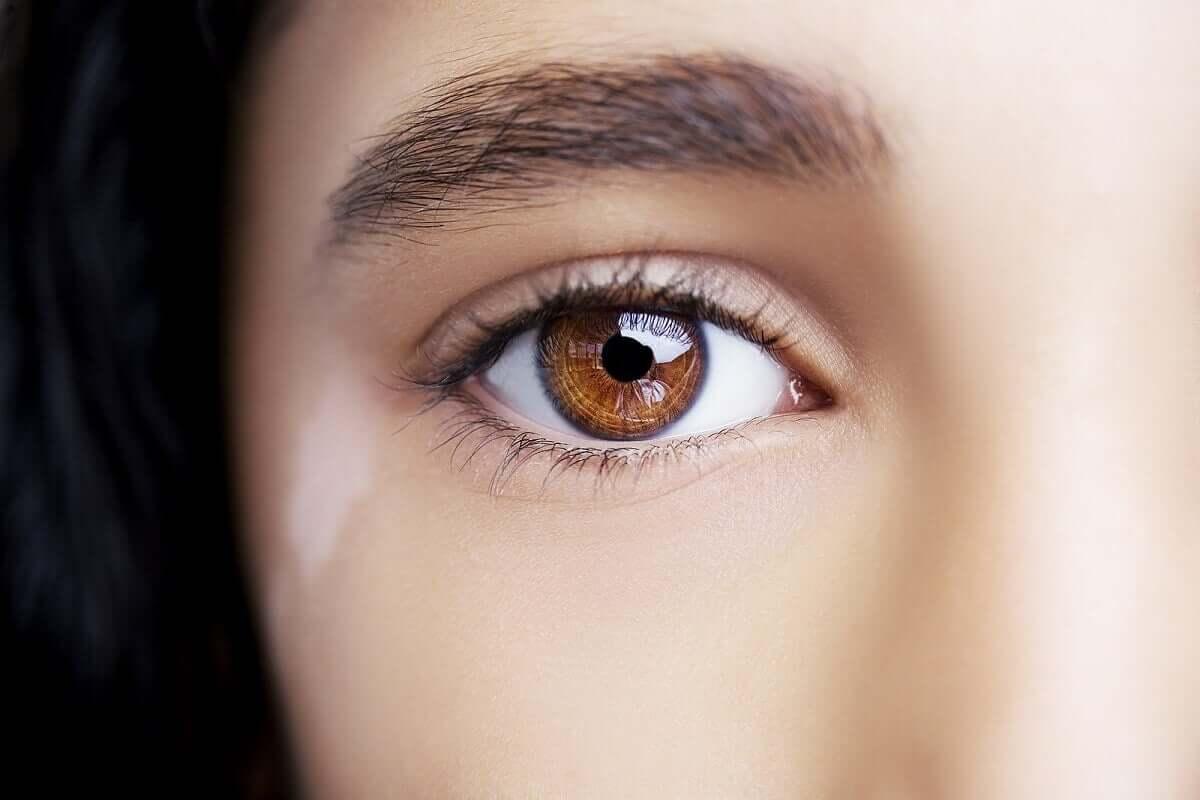 A woman with vitiligo coloured marks on eyelids.