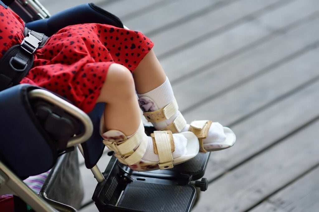 Some types of cerebral palsy requires the use of a wheelchair.
