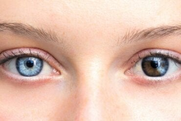 Changes in Eye Color Can Be Cause for Concern
