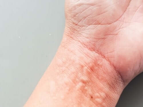 How Chronic Urticaria Affects Your Quality of Life