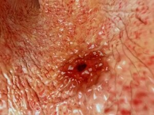 How Many Types of Ulcers Are There?
