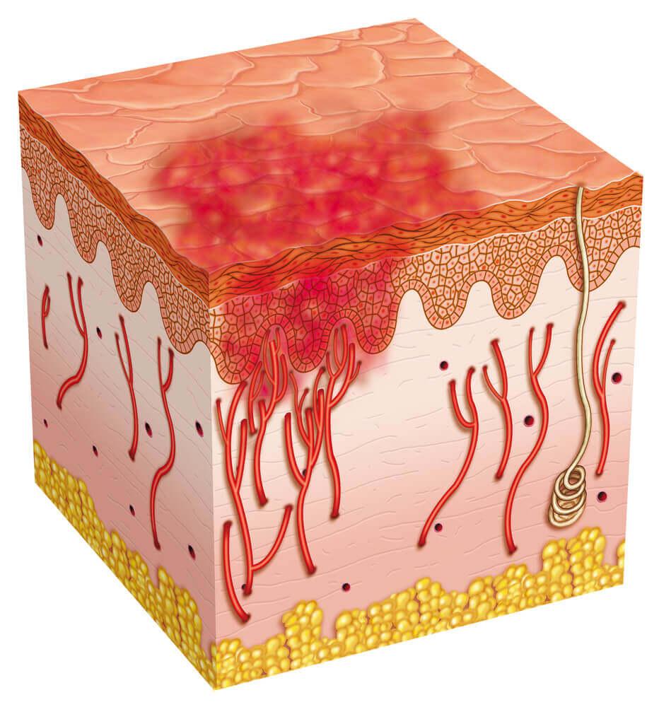 A digital representation of a skin ulcer.