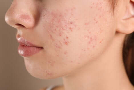 Birth control for skin conditions like acne.