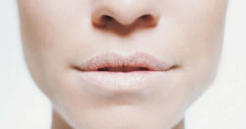 Dry lips are a sign of dehydration.