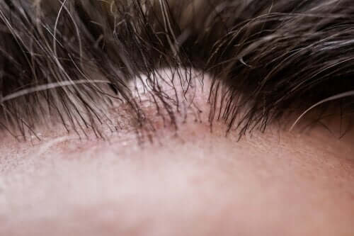 Dermatofibroma: What Is It Exactly?
