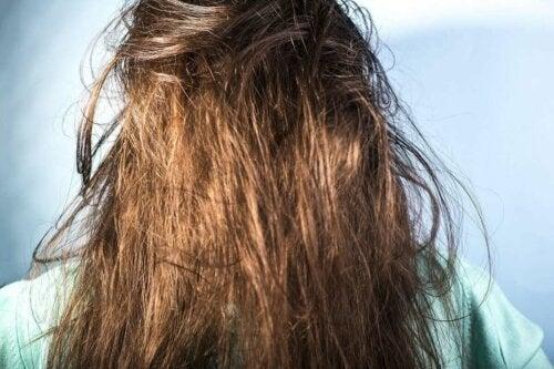 Greasy hair.