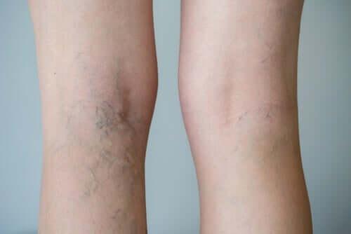 Legs with varicose veins.