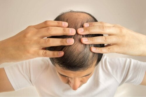 A balding man.