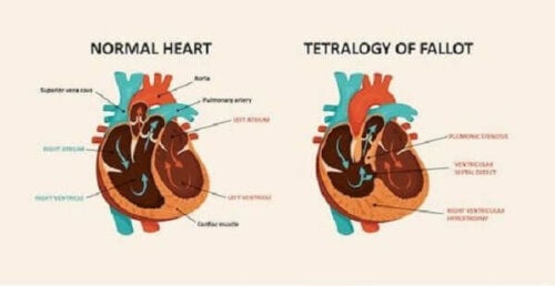 A normal heart vs. a heart with tetralogy of Fallot.