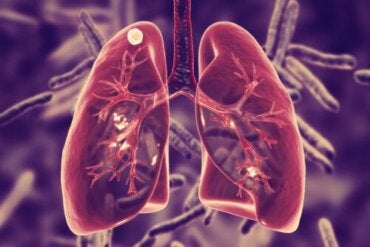 What is Pulmonary Tuberculosis and What Are Its Symptoms?