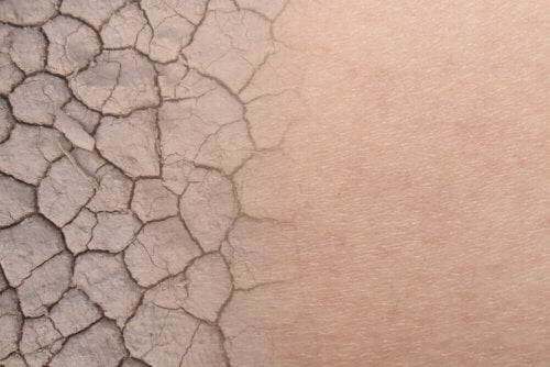 A closeup of dry skin.