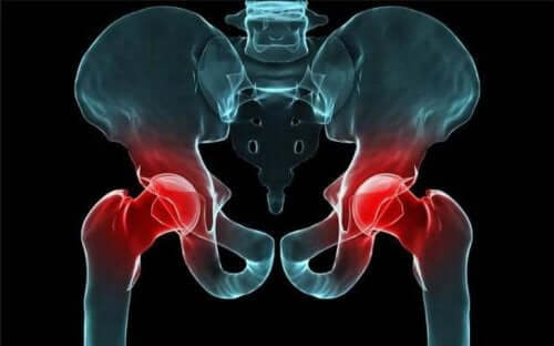 A digital representation of an X-ray of the hips, with the ball and socket in red.