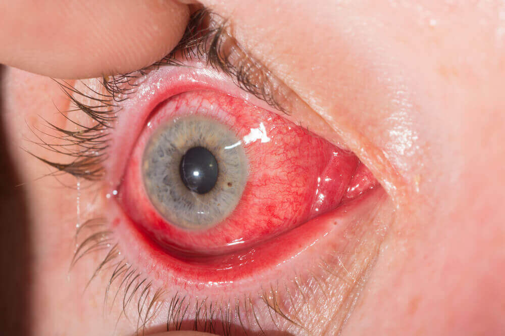 An eye that's bright red due to allergies.