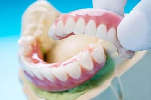 Dental Bridge: Types, Benefits, and Disadvantages