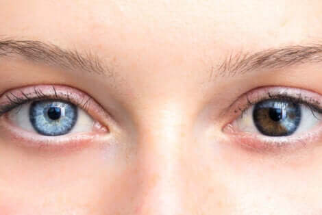 Woman with two different color eyes.