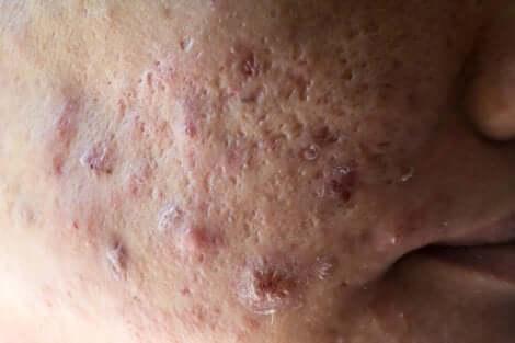 A hormonal acne scar.