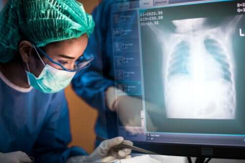 Lung Transplant: Everything You Need to Know