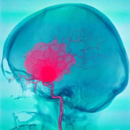 A stroke on the brain.