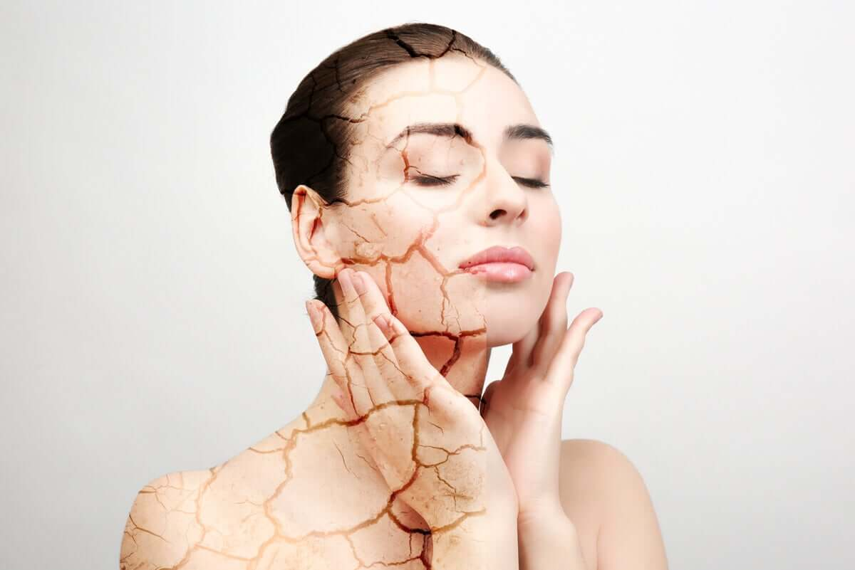 Woman with dry skin touches her face.