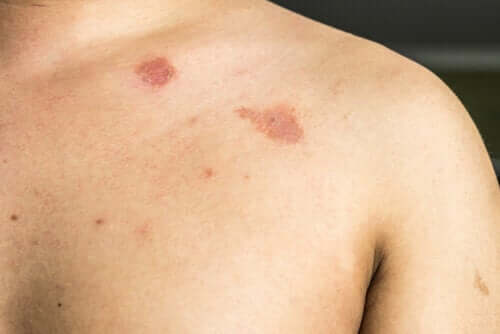 Description and Characteristics of Pityriasis Versicolor