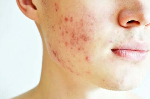 Cystic Acne Is the Most Aggressive Variant of Acne