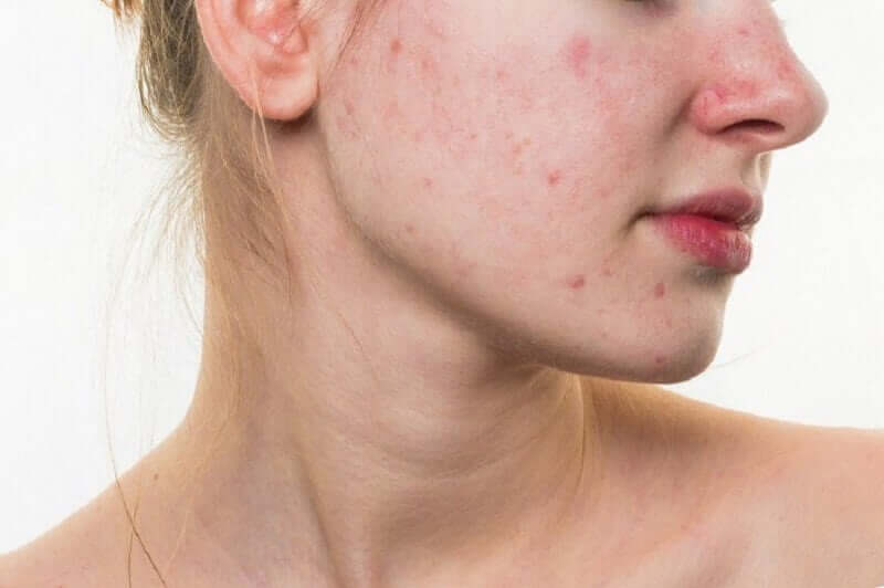 A woman with this aggressive form of acne.