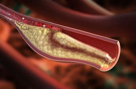 Cholesterol in the arteries.