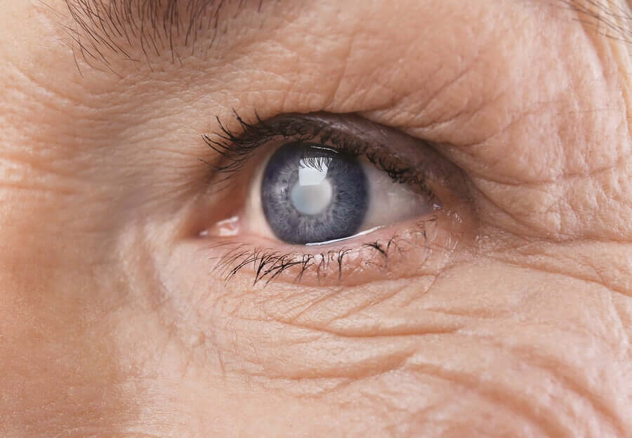 An older woman with diabetic retinopathy.