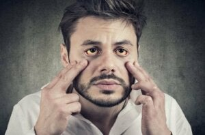 Gilbert's Syndrome: Symptoms and Treatment