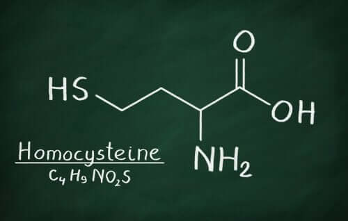 The formula for Homocysteine.