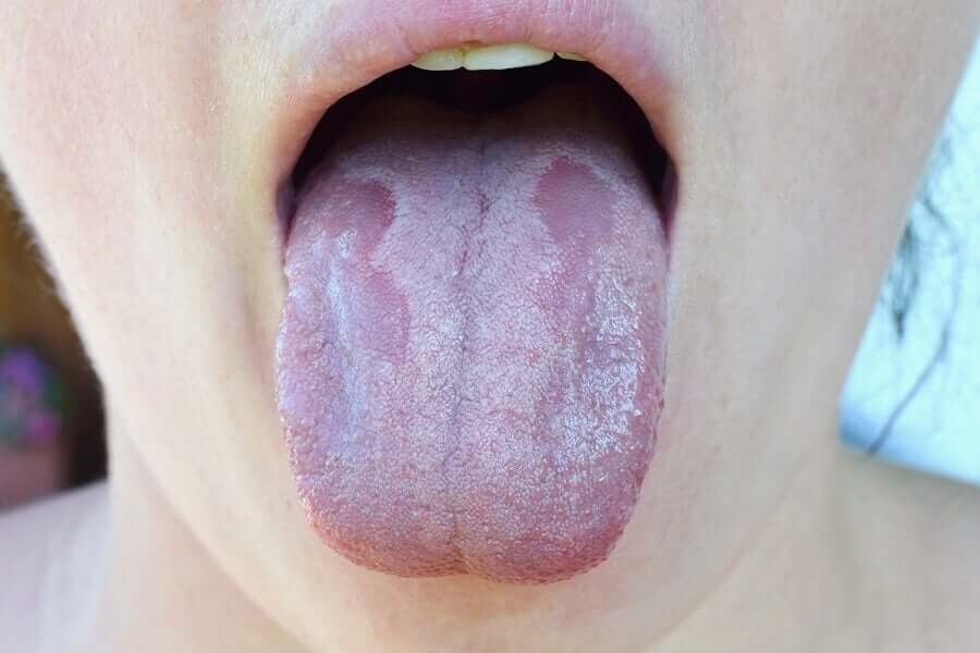 Tongue with bacterial infection.