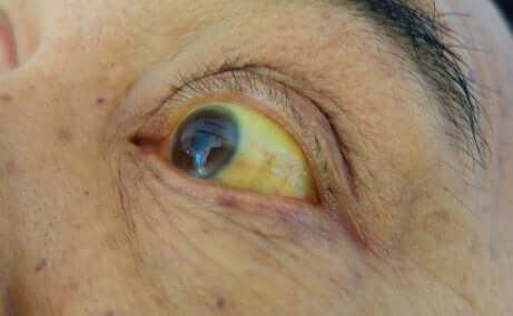 Yellow eyes from Gilbert's syndrome.