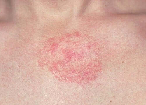 A rash on a person's chest.