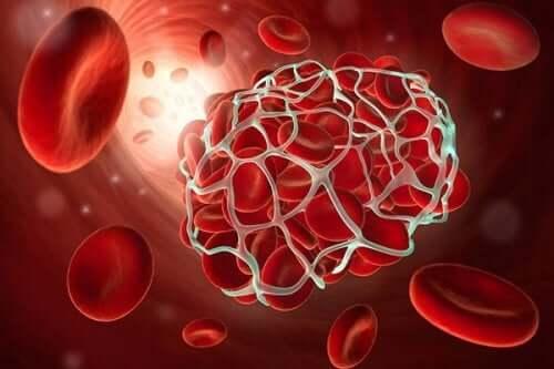 A blood clot.