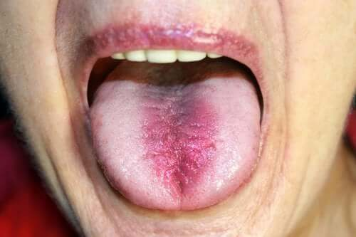 Burning Mouth Syndrome: Identification and Treatment