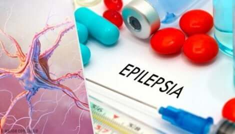 The word epilespy.