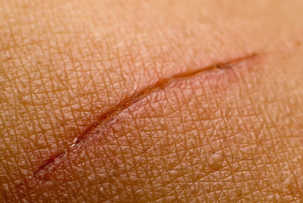 A small scar on the skin's surface.