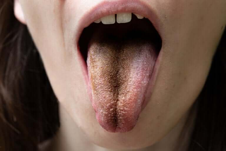 Black Hairy Tongue: Causes, Symptoms and Tips