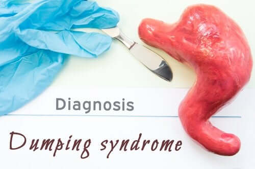 Dumping Syndrome: What Is It?