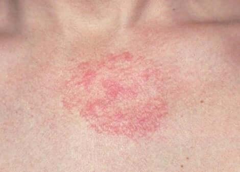 A skin rash.