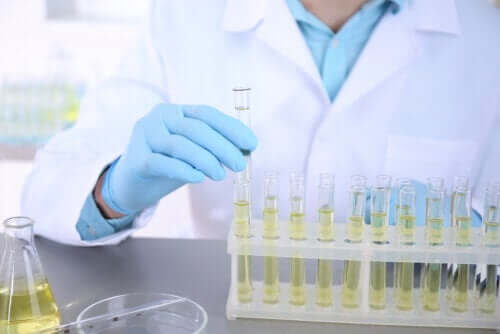 Urine Culture: What Is it and What's it Used For?