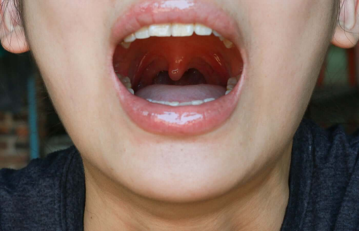 A woman with a swollen uvula.