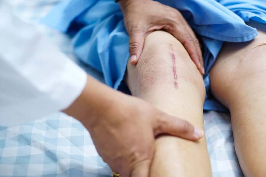 A knee with a scar.