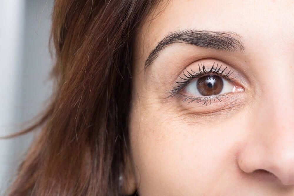 En kvinde med mørke rander under øjnene