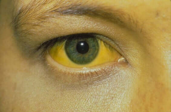 A yellow eye.