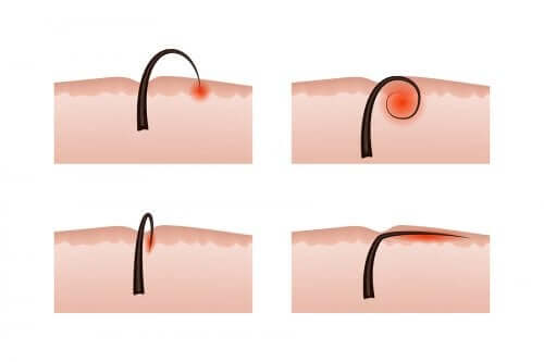 The Causes of Ingrown Hair and its Removal