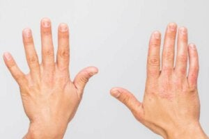 What Are Autoinflammatory Diseases?